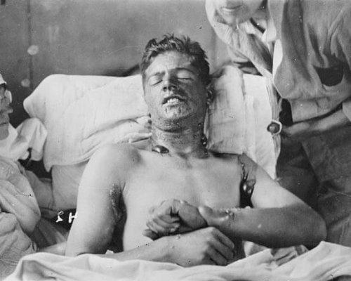 Verletzungen von Giftgas im Ersten Weltkrieg